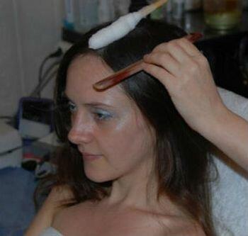 криоассаж кожи головы