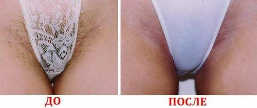 лазерная эпиляция бикини фото до и после