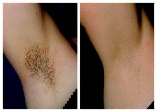 Фото до и после лазерной эпиляции подмышек