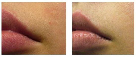 фото до и после лазерной эпиляции верхней губы