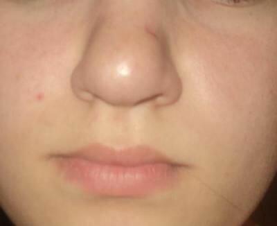 Нос картошкой