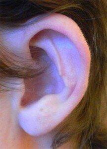 следы операции на ухе