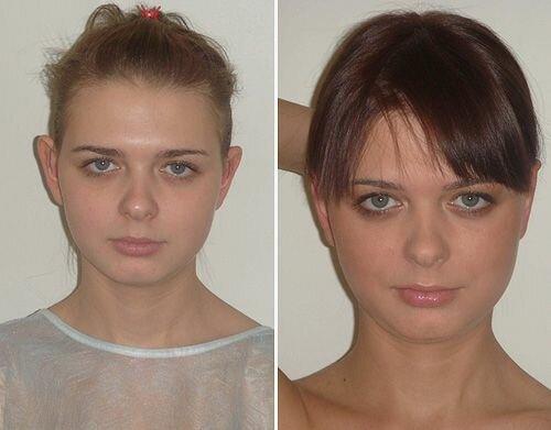 Фото до и после лазерной пластики ушей