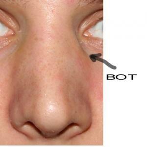 костная мозоль на носу