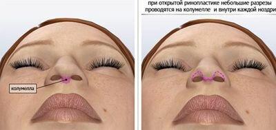открытая ринопластика кончика носа