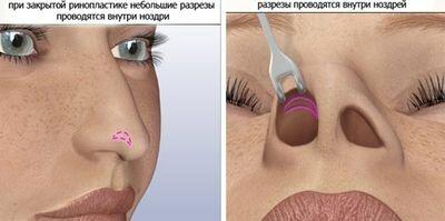 закрытая ринопластика кончика носа