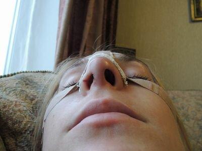разные ноздри после ринопластики