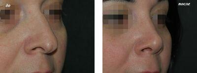 Опустился кончик носа после операции