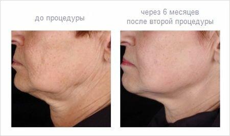 Фото до и после термолифтинга