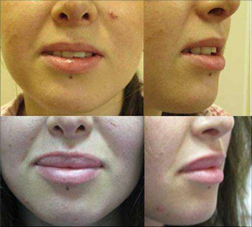 пластика губ фото до и после