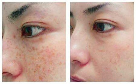 Фото до и после удаления пигментных пятен при помощи мезотерапии и химического пилинга