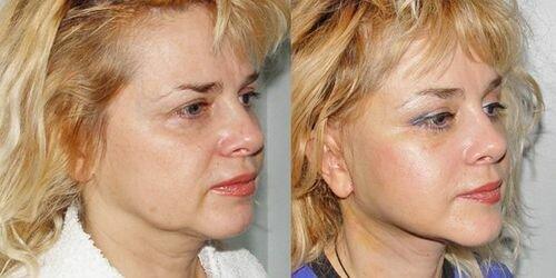 Фото до и после процедур золотыми нитями