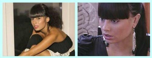 Нелли Ермолаева до и после отопластики