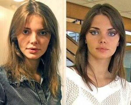 Елизавета Боярская до и после ринопластики