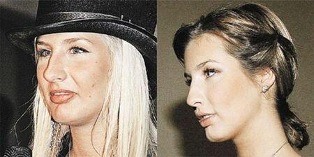 Кэти Топурия до и после ринопластики