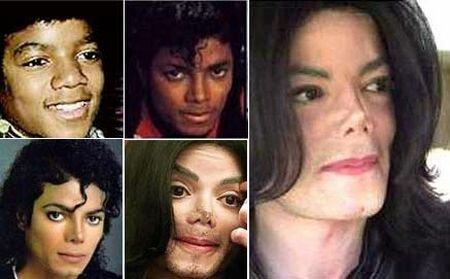 Майкл Джексон до и после ринопластики