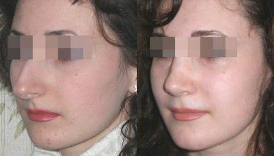 фото до и после повторной ринопластики