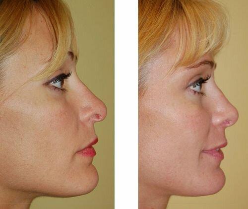 Фото до и после неудачной пластики носа