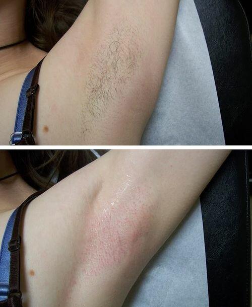 фото до и после энзимной эпиляции
