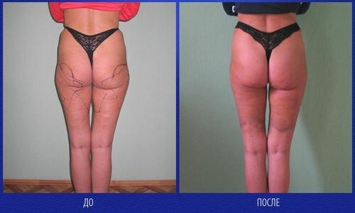 фото до и после липосакции бедер