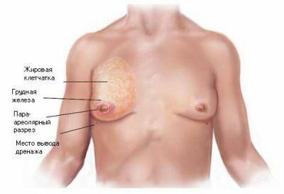 Липосакция груди у мужчин