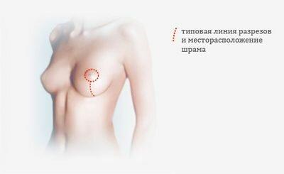 липосакция груди у женщин