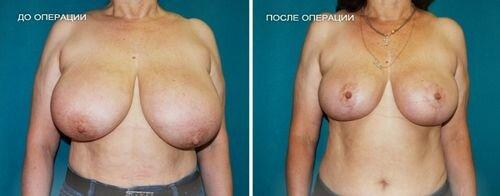 фото до и после липосакции груди у женщин