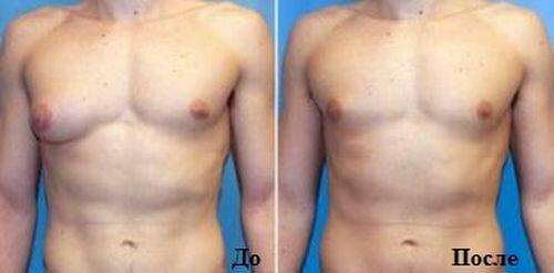 Как уменьшить вес фотографии в acd see. Как сбросить жир с живота мужчины.