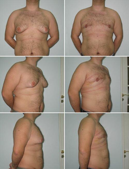 фото до и после липосакции груди у мужчин