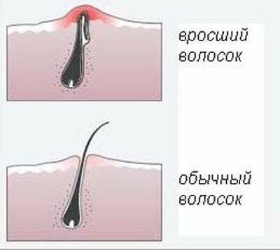 осложнения шугаринга
