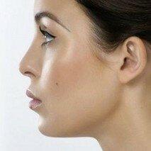 повторная коррекция носа