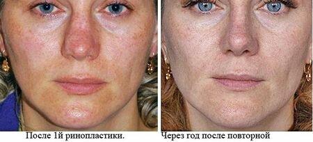 Вторичная и первичная пластика носа