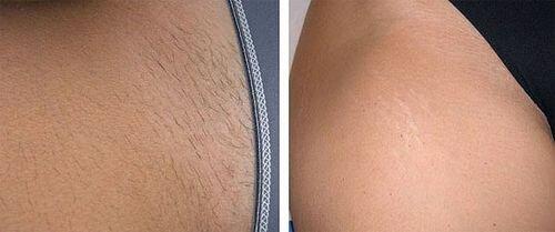 шугаринг бикини фото до и после