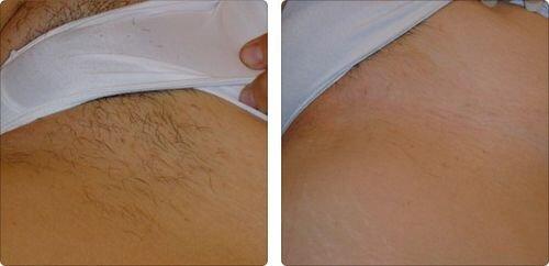 Фото до и после шугаринга