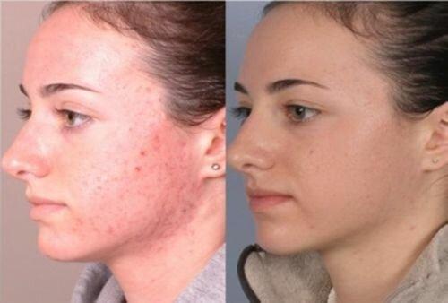 Фото до и после фенолового пилинга