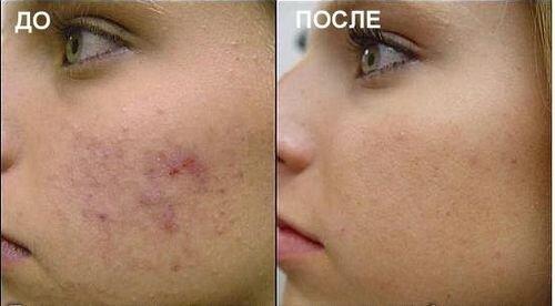 газожидкостный пилинг фото до и после