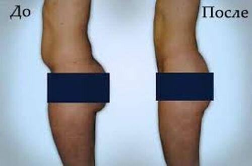 фото до и после инъекционного липолиза