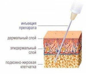 инъекционный липолиз