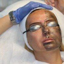 процедура карбоновой чистки лица