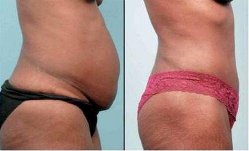 фото до и после лазерной липосакции живота