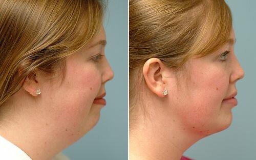 фото до и после липосакции лица