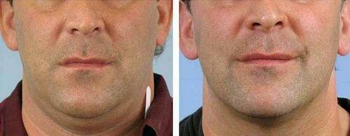 Радиочастотная липосакция фото до и после