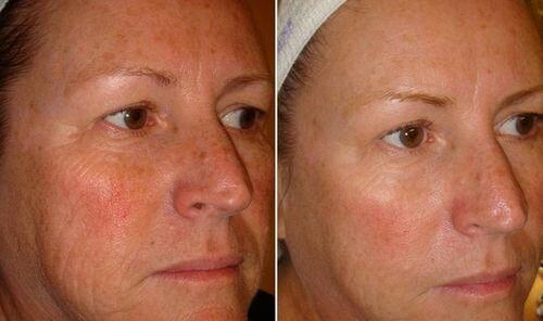фото до и после солевого пилинга