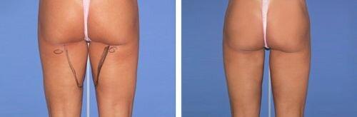 фото до и после водоструйной липосакции
