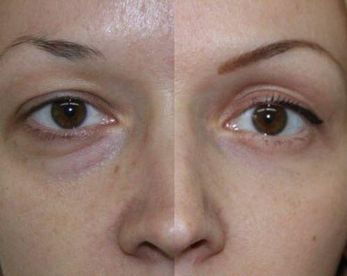 блефаропластика верхних век фото до и после