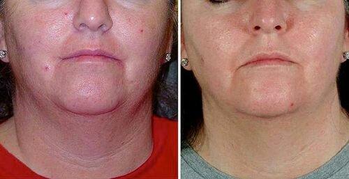 ультразвуковая чистка кожи фото до и после