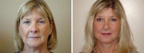 блефаропластика век фото до и после
