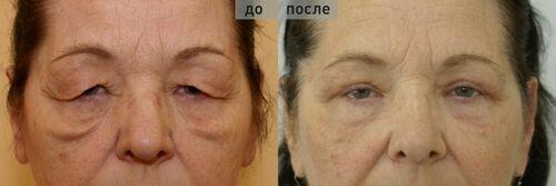 Фото: фото до и после круговой блефаропластики