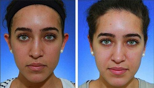 пилинг фруктовыми кислотами фото до и после