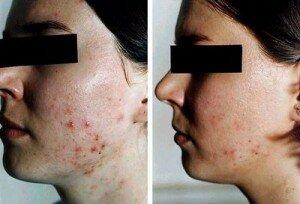 фото до и после пилинга